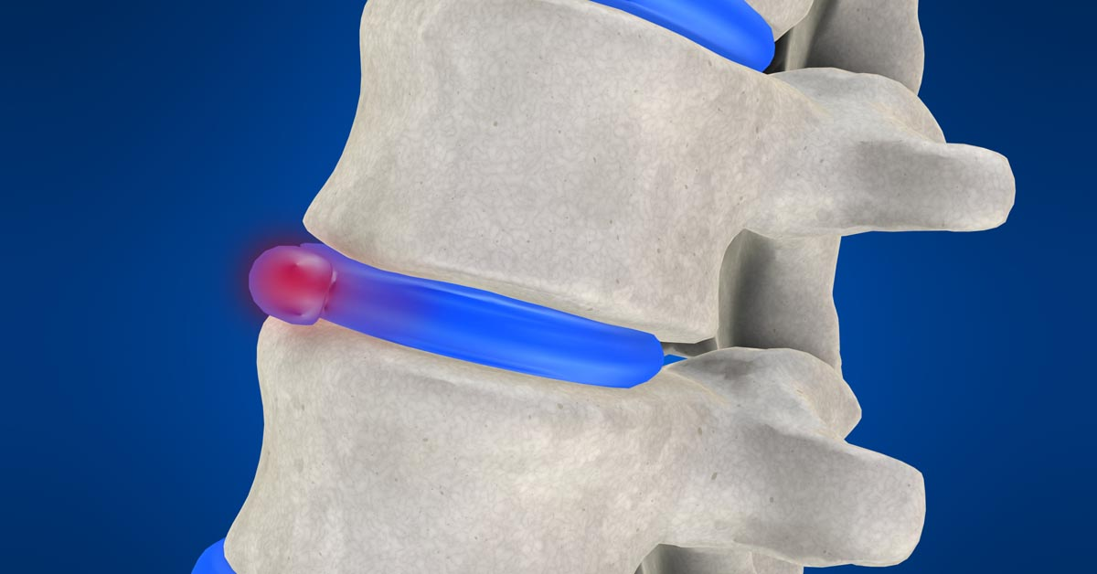 Land O' Lakes, FL non-surgical disc herniation treatment
